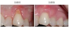 牙齦覆蓋術-案例02