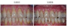 牙齦覆蓋術-案例01